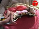 Baby Born With 6 Legs In Recovery