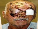 Very Graphic Picture: Miami Zombie Victim Ronald Poppo