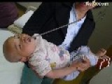 Welding Electrode Piercing 2cm Into One Year Old Baby's Brain