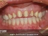 Tijuana Dentist Helped Me To Smile Again...!