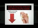 Como Eliminar Celulitis Rapidamente Celulitis Eliminala