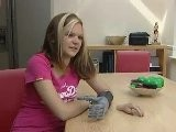 Swindon Girl Chloe Holmes Gets Bionic Fingers