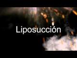 Lipoescultura Sin Cirugia - Lipoescultura Antes E Depois Despues